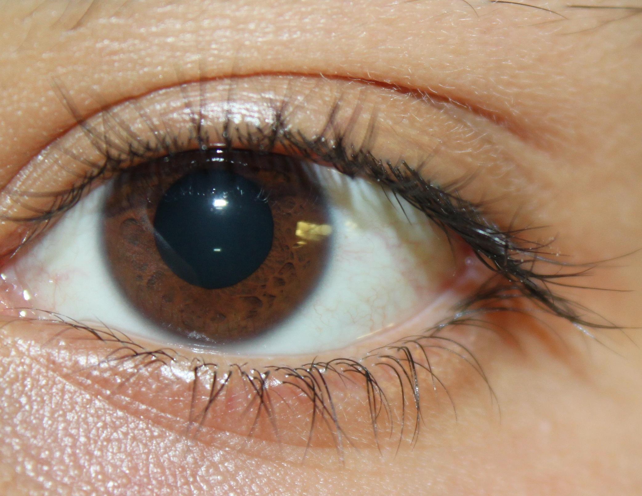 Eye Unique Eye Colors
