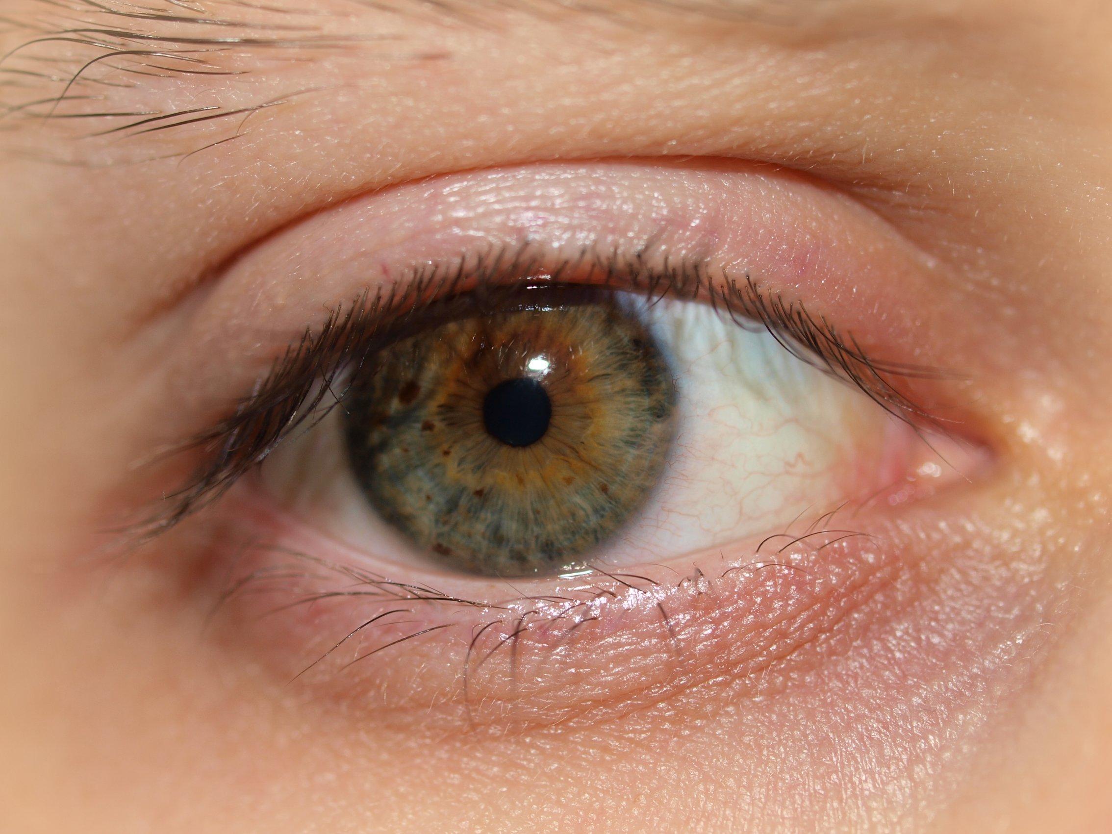 Unique Natural Eye Colors